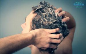 شرایط استفاده از پروتز مو
